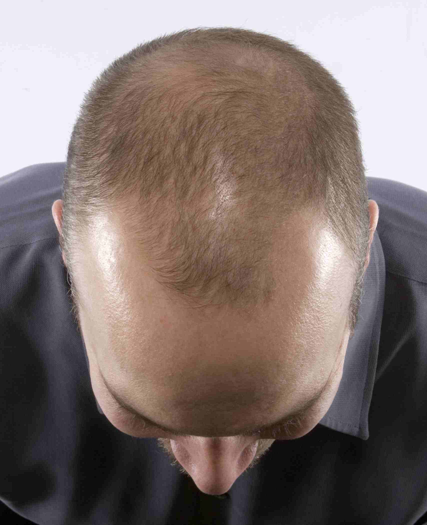 How to Prevent and Reverse Hair Loss How to Prevent and Reverse Hair Loss new pics